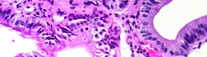 Protista cystoisospora belli imagen